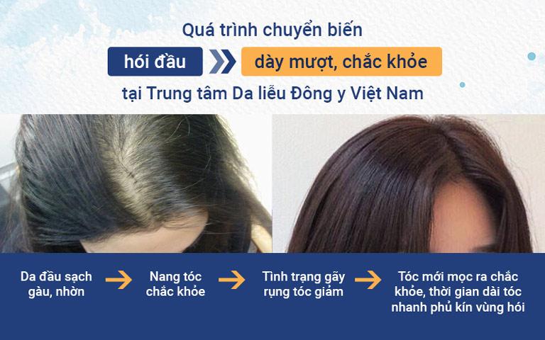 Những chuyển biến tích cực của mái tóc sau khi điều trị tại Trung tâm Da liễu Đông y Việt Nam