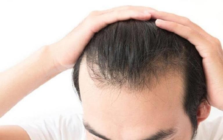 Mặc cảm về rụng tóc ảnh hưởng rất lớn đến công việc của tôi