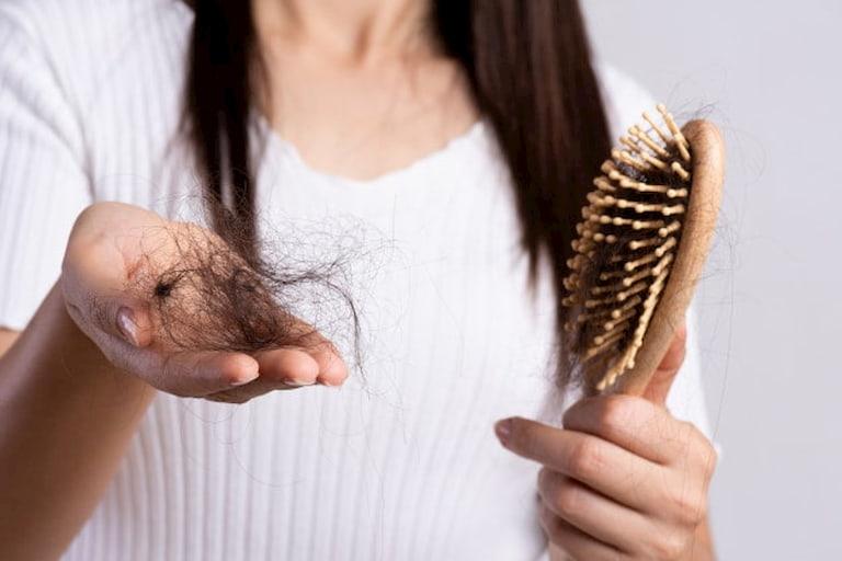Rụng tóc ảnh hưởng nặng nề đến thẩm mỹ và tâm lý người bị