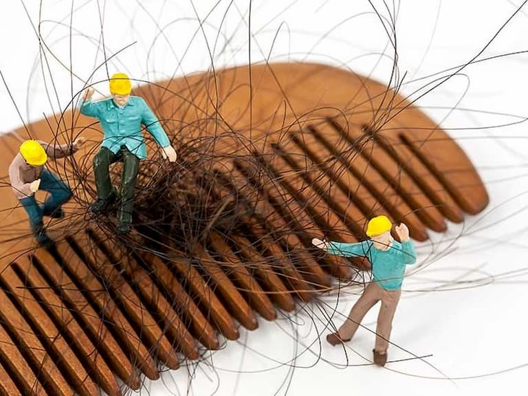 Điều trị rụng tóc khó khăn khiến nhiều người có tâm lý muốn bỏ cuộc