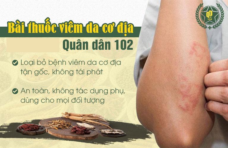 Bài thuốc viêm da cơ địa Quân dân 102 mang đến tác động toàn diện, trị bệnh tận gốc
