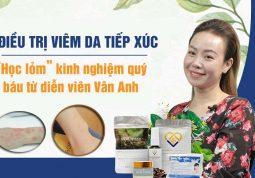 Kinh nghiệm điều trị viêm da tiếp xúc của diễn viên Vân Anh